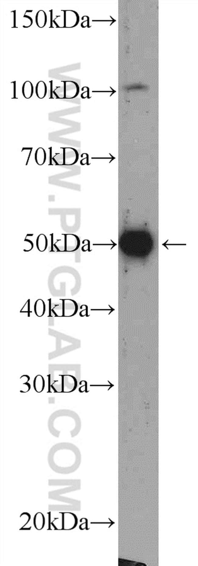 Beta Arrestin 2 Antibody in Western Blot (WB)