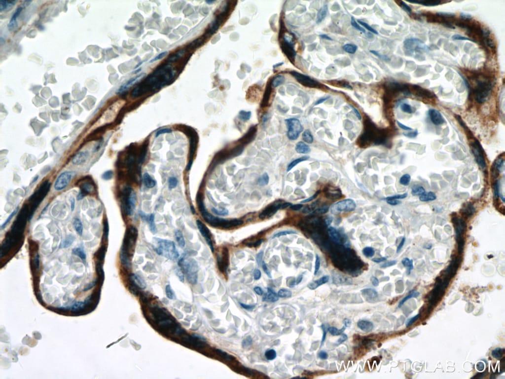 Placental lactogen Antibody in Immunohistochemistry (Paraffin) (IHC (P))