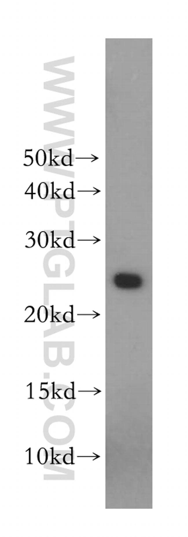 Placental lactogen Antibody in Western Blot (WB)
