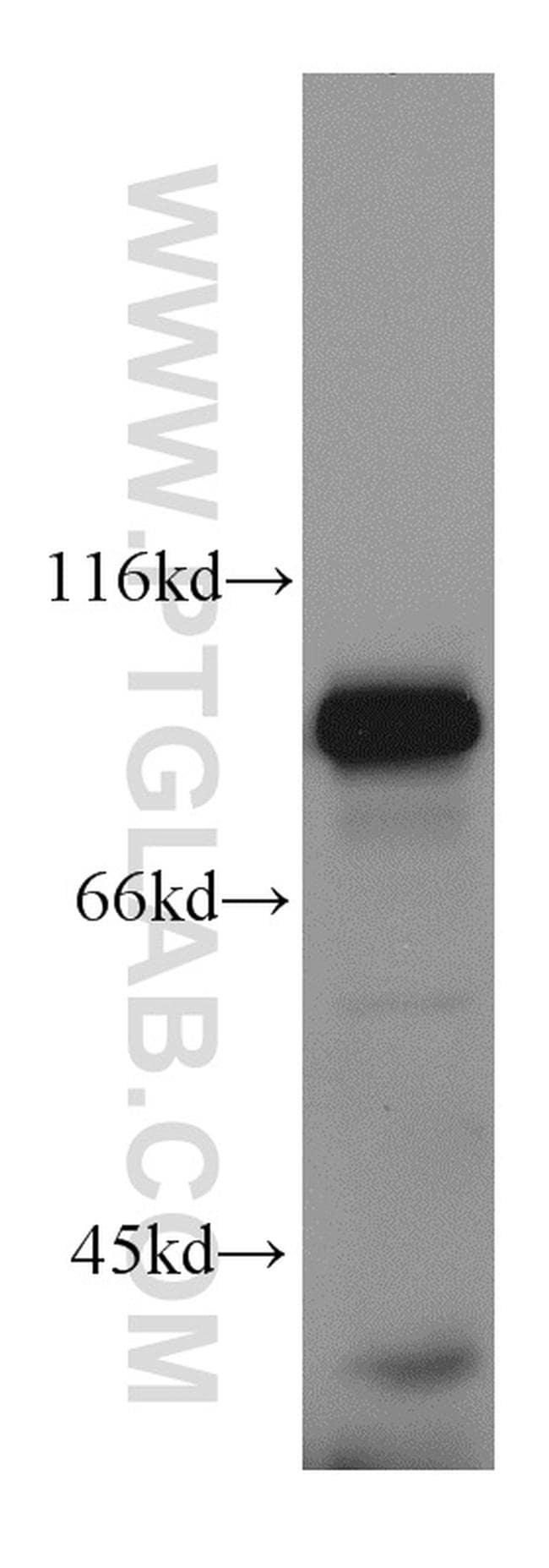 Mitofilin Antibody in Western Blot (WB)