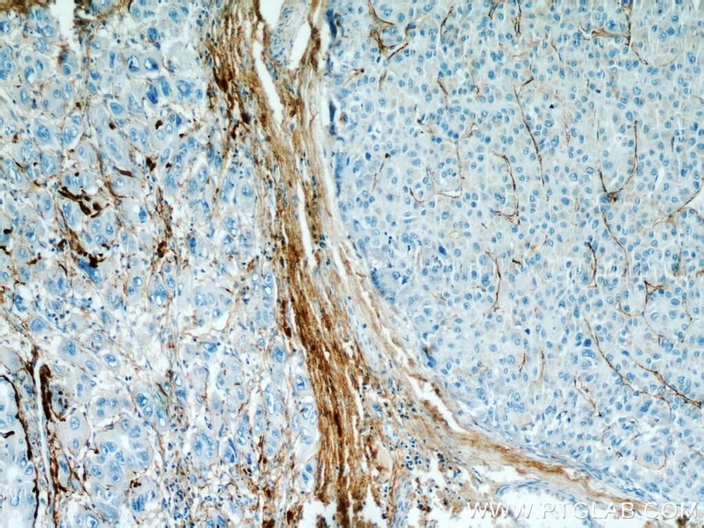 TGFBI / BIGH3 Antibody in Immunohistochemistry (Paraffin) (IHC (P))