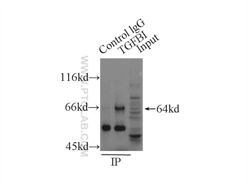 TGFBI / BIGH3 Antibody in Immunoprecipitation (IP)