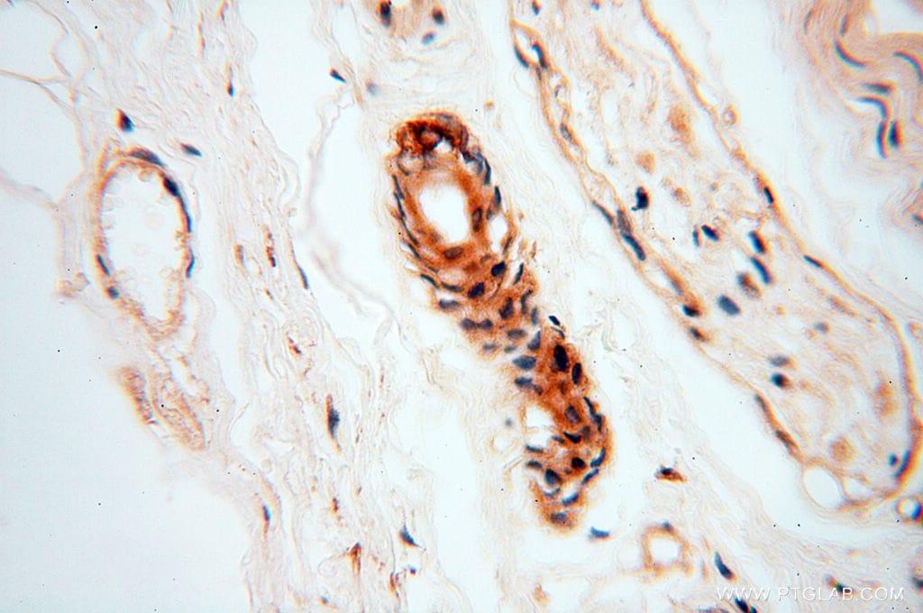 RUVBL2 Antibody in Immunohistochemistry (Paraffin) (IHC (P))