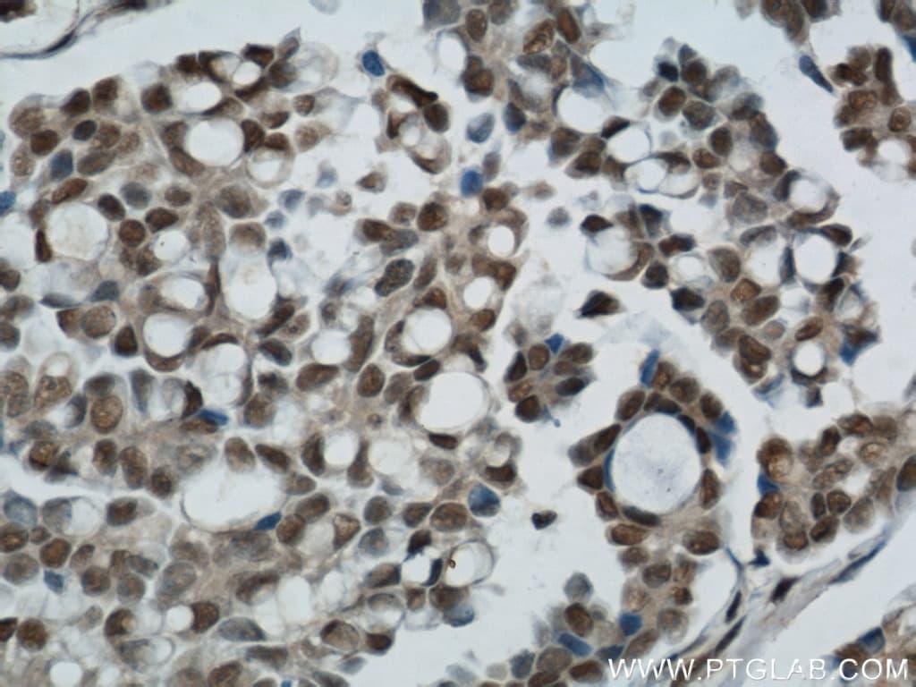 Ubiquitin Antibody in Immunohistochemistry (Paraffin) (IHC (P))