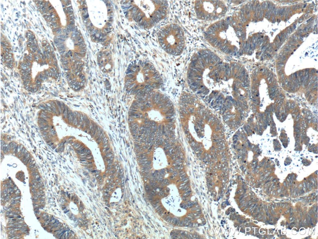 ARL4C Antibody in Immunohistochemistry (Paraffin) (IHC (P))