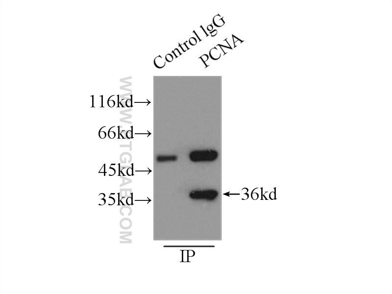 PCNA Antibody in Immunoprecipitation (IP)
