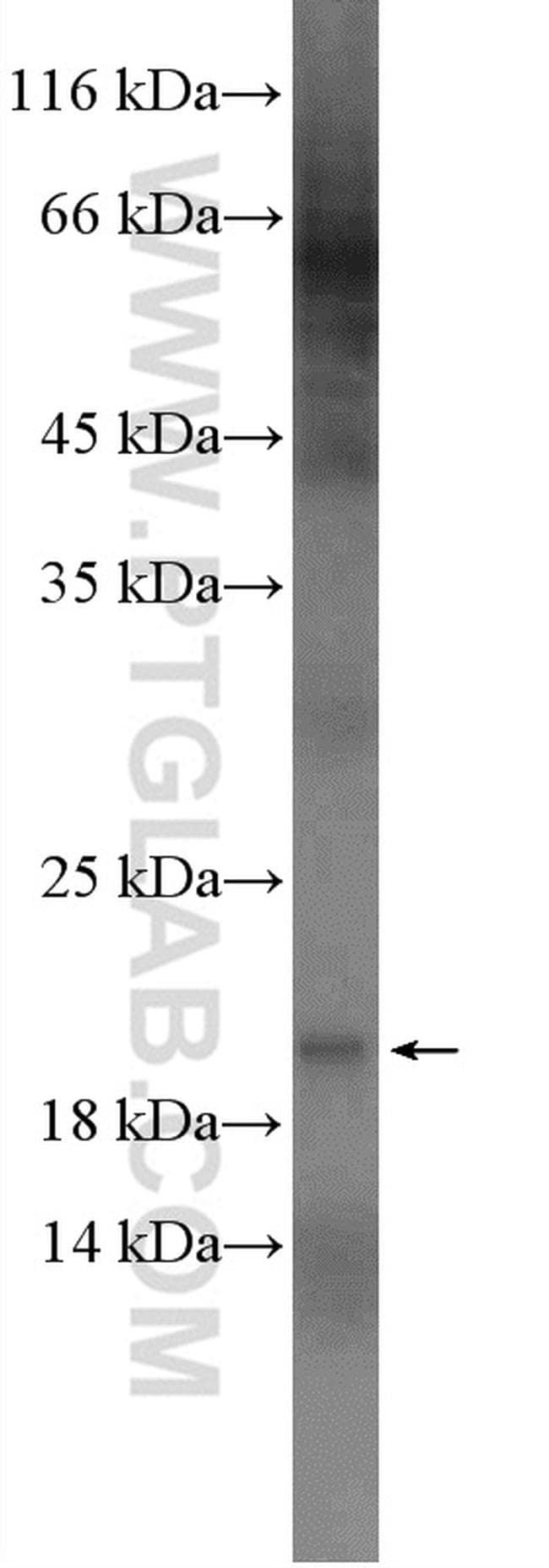 UBE2V1 Antibody in Western Blot (WB)