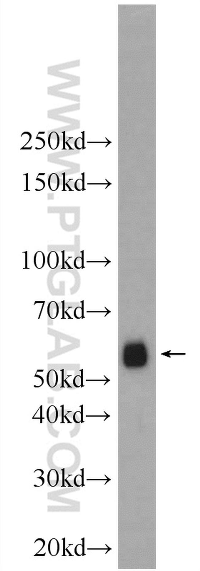 EIF3D Antibody in Western Blot (WB)