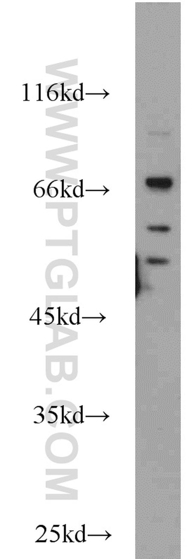 Sam68 Antibody in Western Blot (WB)