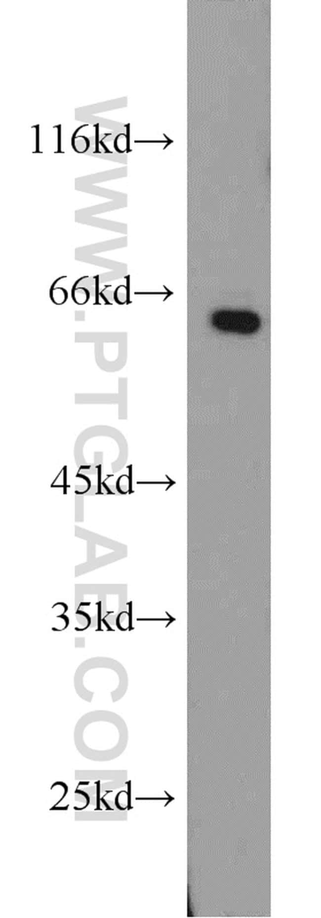 SMAD4 Antibody in Western Blot (WB)