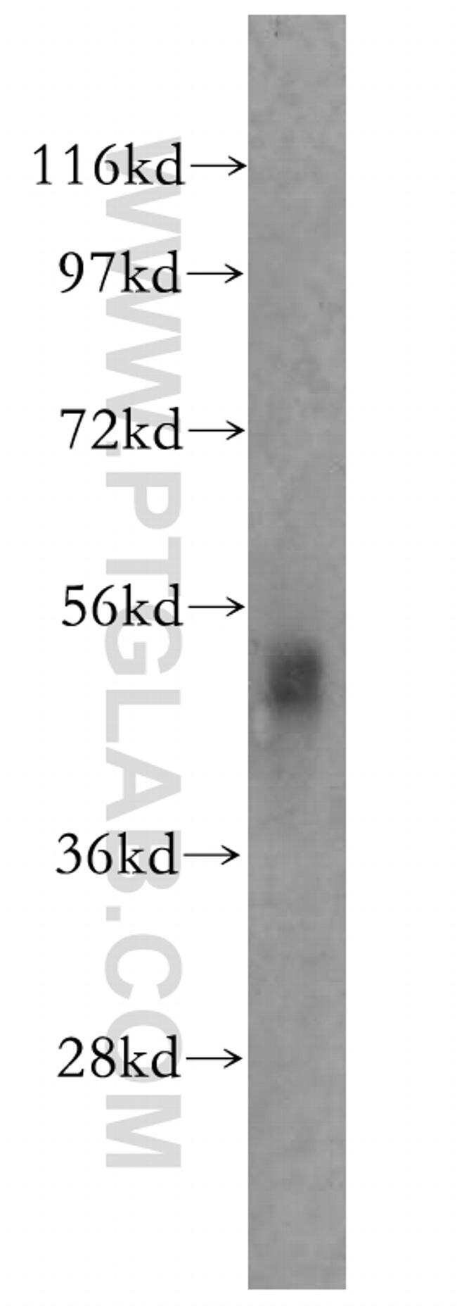 SNX17 Antibody in Western Blot (WB)