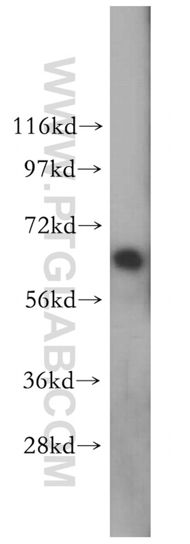 Lamin A/C Antibody in Western Blot (WB)