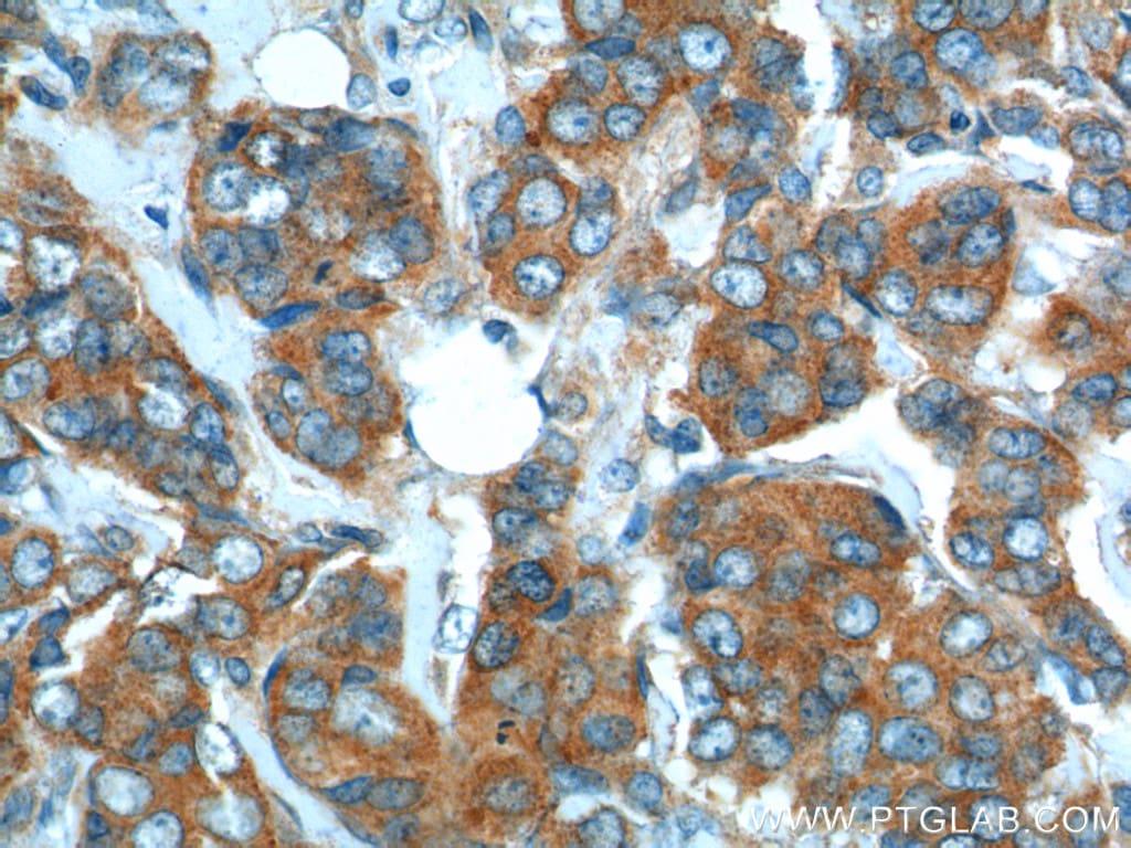SNX1 Antibody in Immunohistochemistry (Paraffin) (IHC (P))