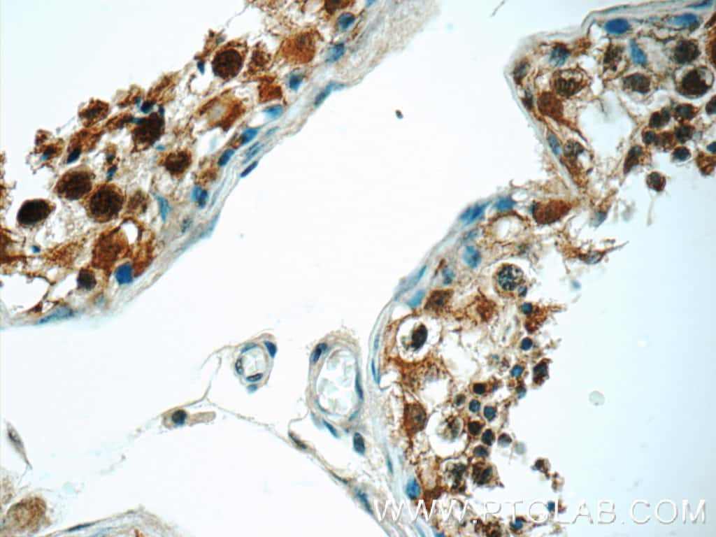 PPP2R4 Antibody in Immunohistochemistry (Paraffin) (IHC (P))