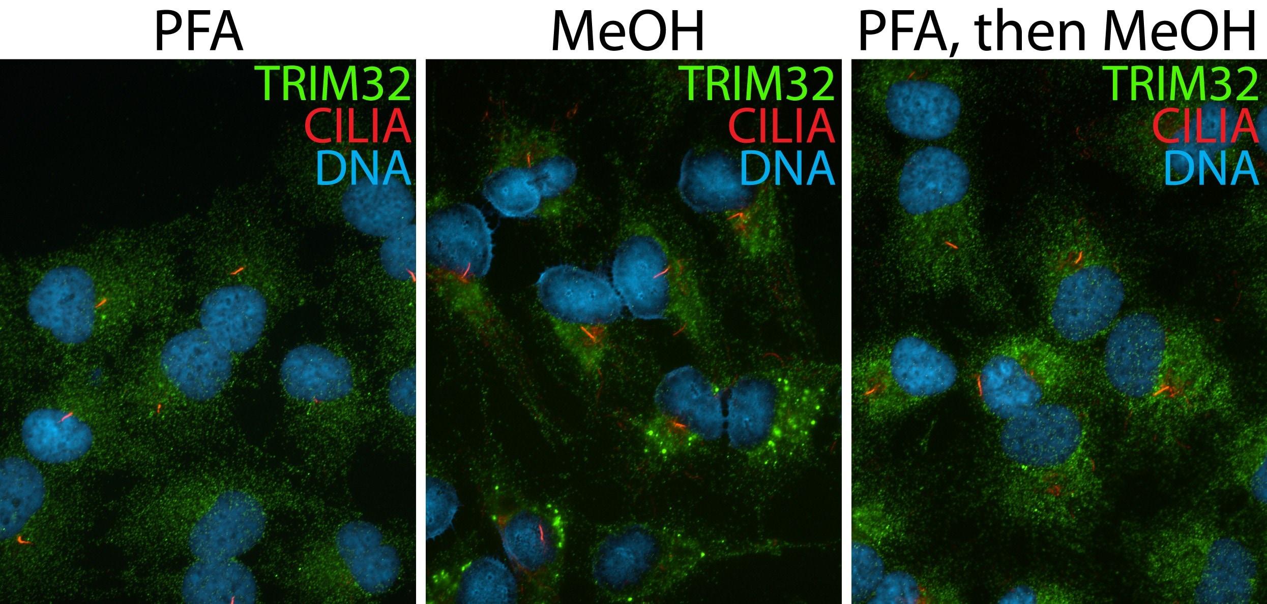 TRIM32 Antibody in Immunofluorescence (IF)