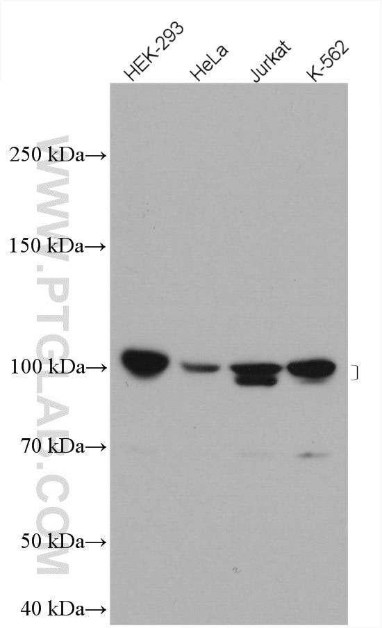 UBE3A Antibody in Western Blot (WB)