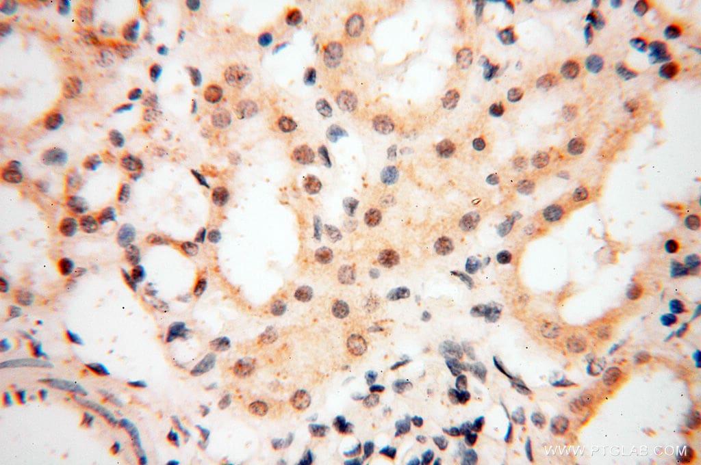 NCBP1 Antibody in Immunohistochemistry (Paraffin) (IHC (P))