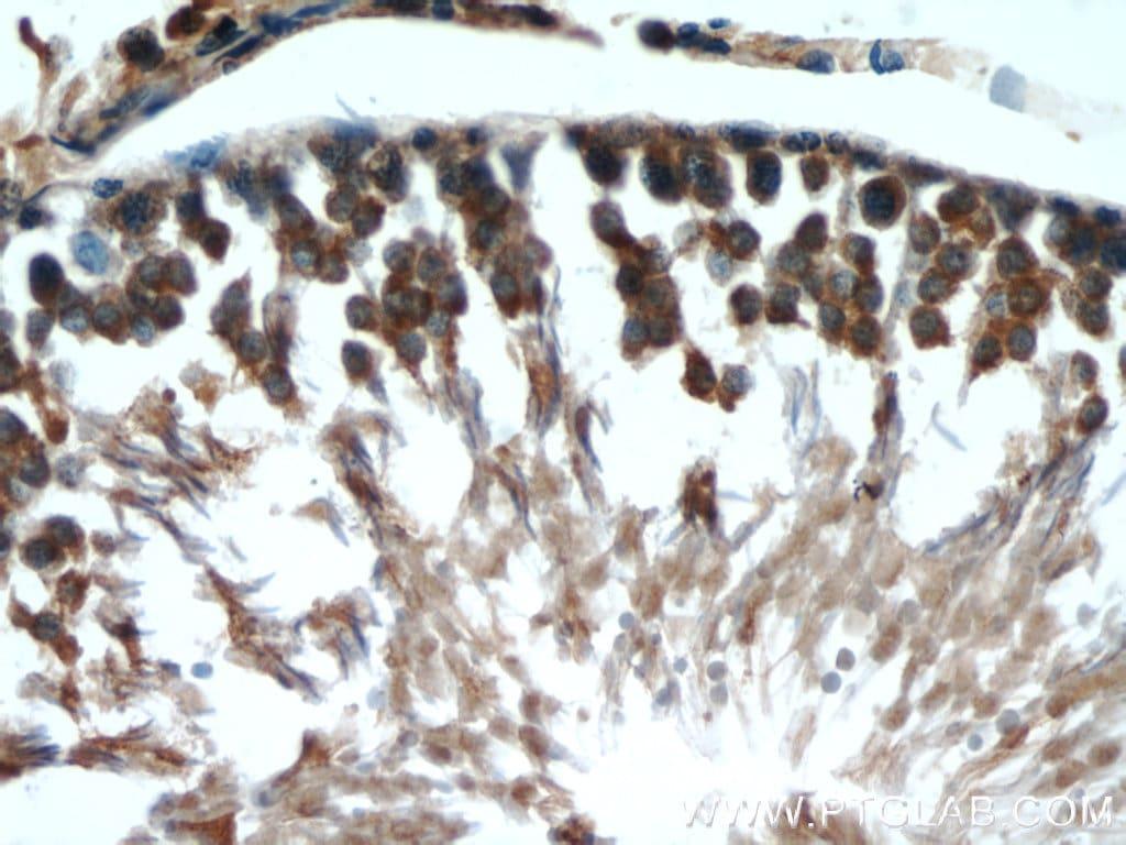 MMP1 Antibody in Immunohistochemistry (Paraffin) (IHC (P))