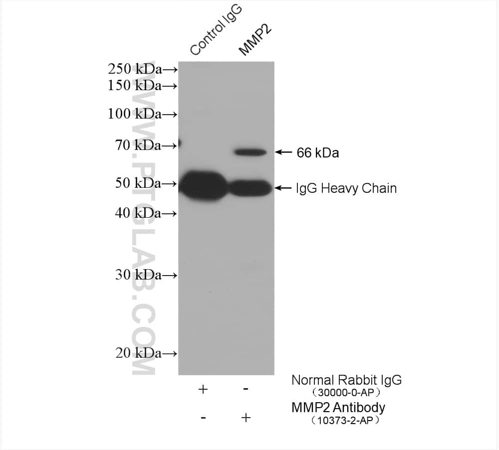 MMP2 Antibody in Immunoprecipitation (IP)