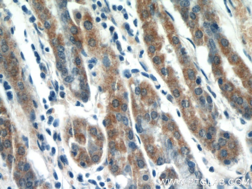 MMP7 Antibody in Immunohistochemistry (Paraffin) (IHC (P))