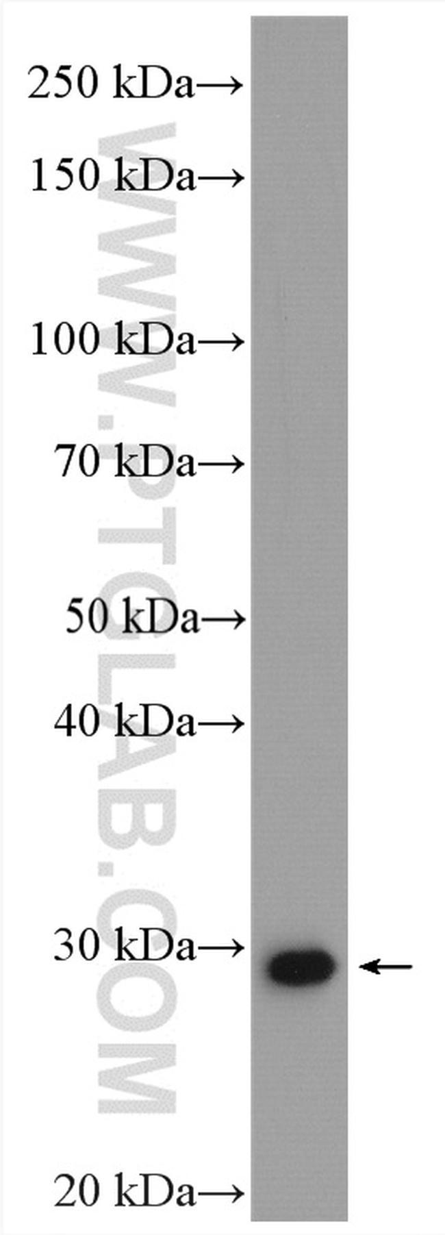 MMP7 Antibody in Western Blot (WB)