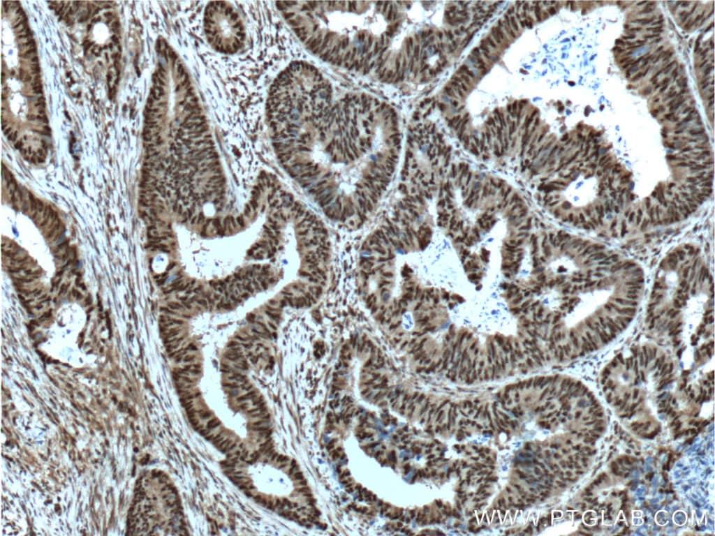 OCT1 Antibody in Immunohistochemistry (Paraffin) (IHC (P))