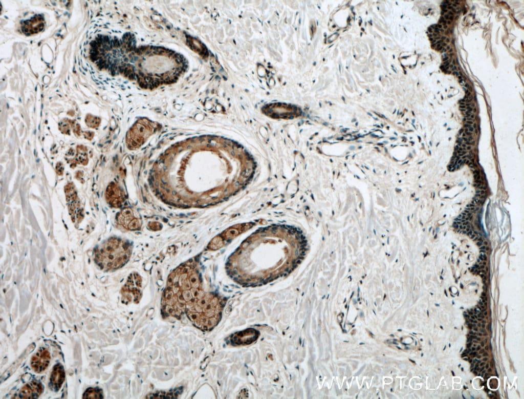 CARD14 Antibody in Immunohistochemistry (Paraffin) (IHC (P))