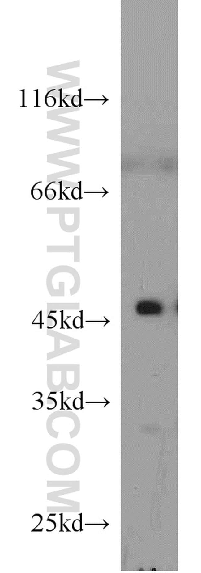 Cytohesin 2 Antibody in Western Blot (WB)