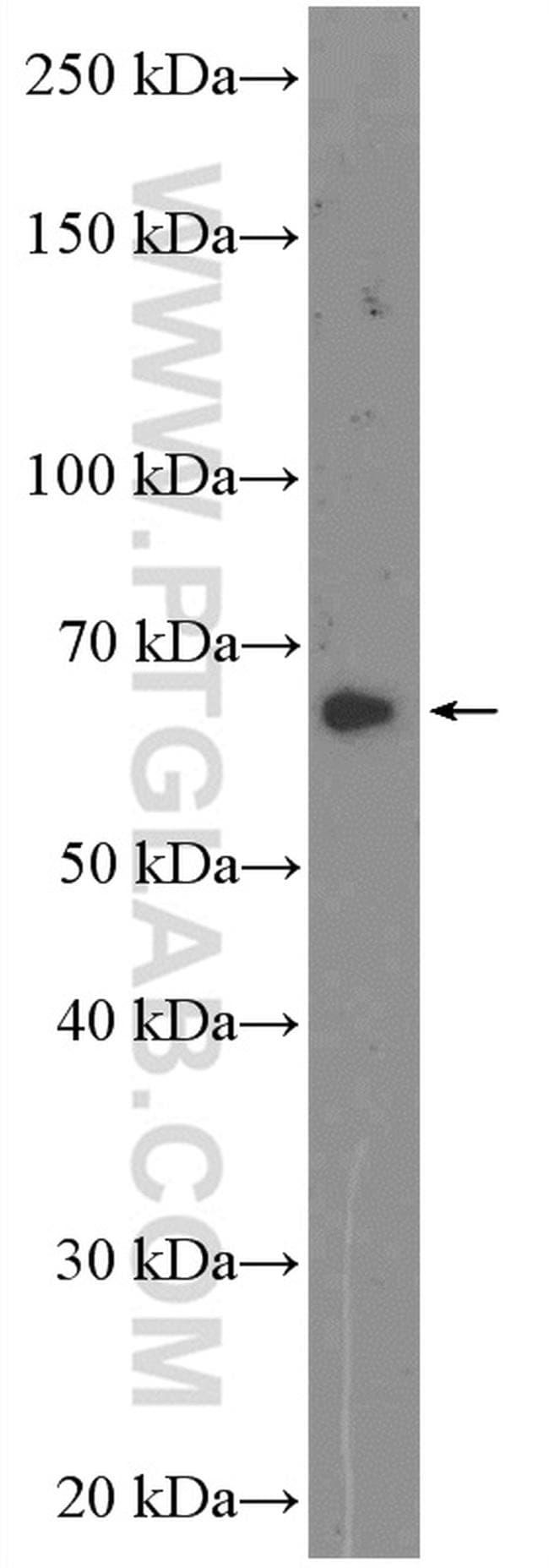 GAD1 Antibody in Western Blot (WB)