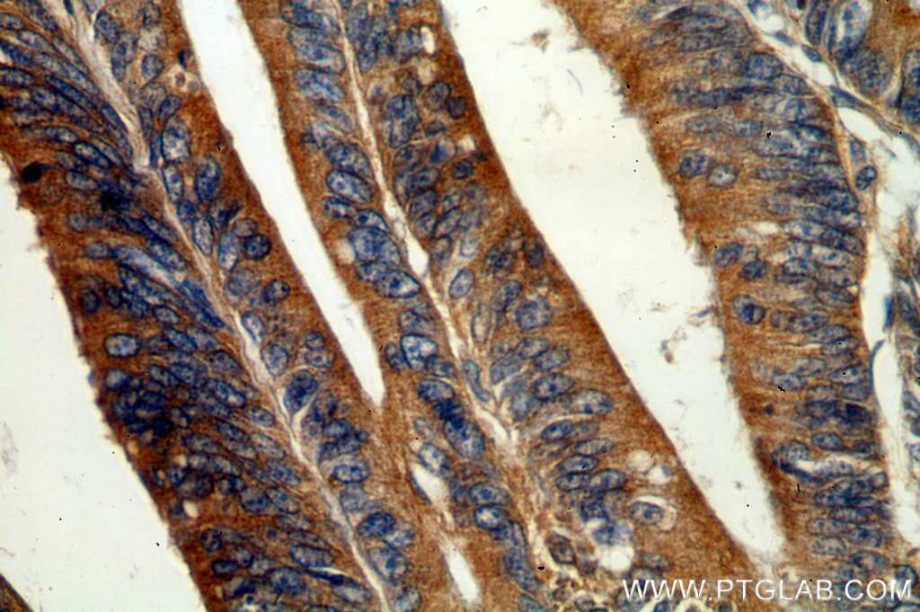 GADD34 Antibody in Immunohistochemistry (Paraffin) (IHC (P))