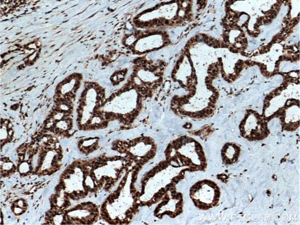 RAN Antibody in Immunohistochemistry (Paraffin) (IHC (P))