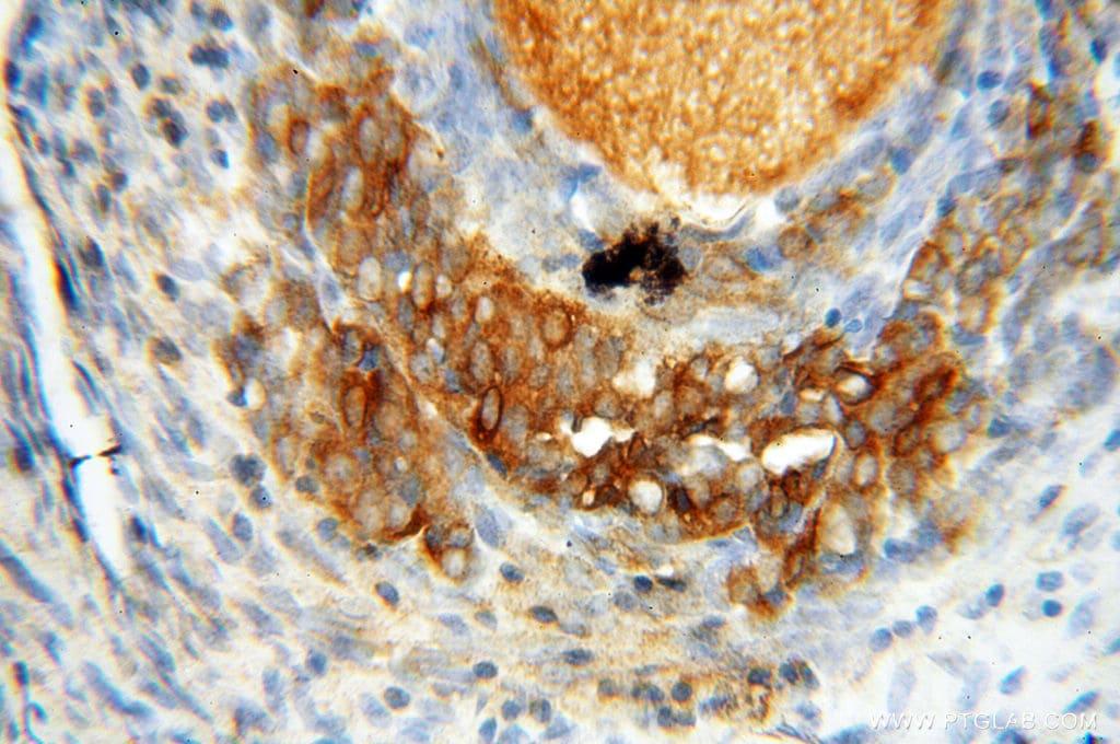 Seladin 1 Antibody in Immunohistochemistry (Paraffin) (IHC (P))