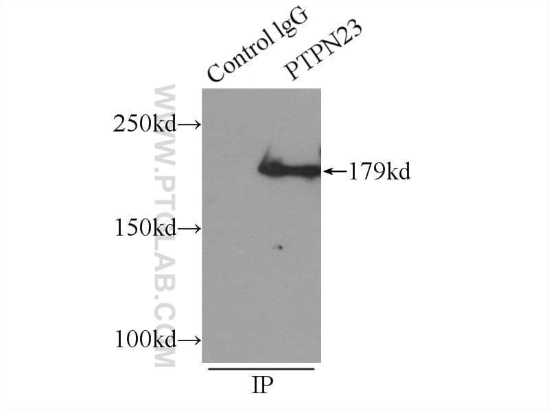 PTPN23 Antibody in Immunoprecipitation (IP)