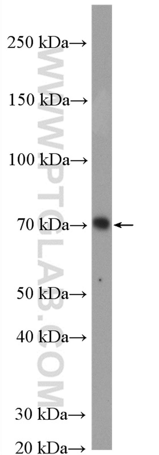 IRAK1 Antibody in Western Blot (WB)