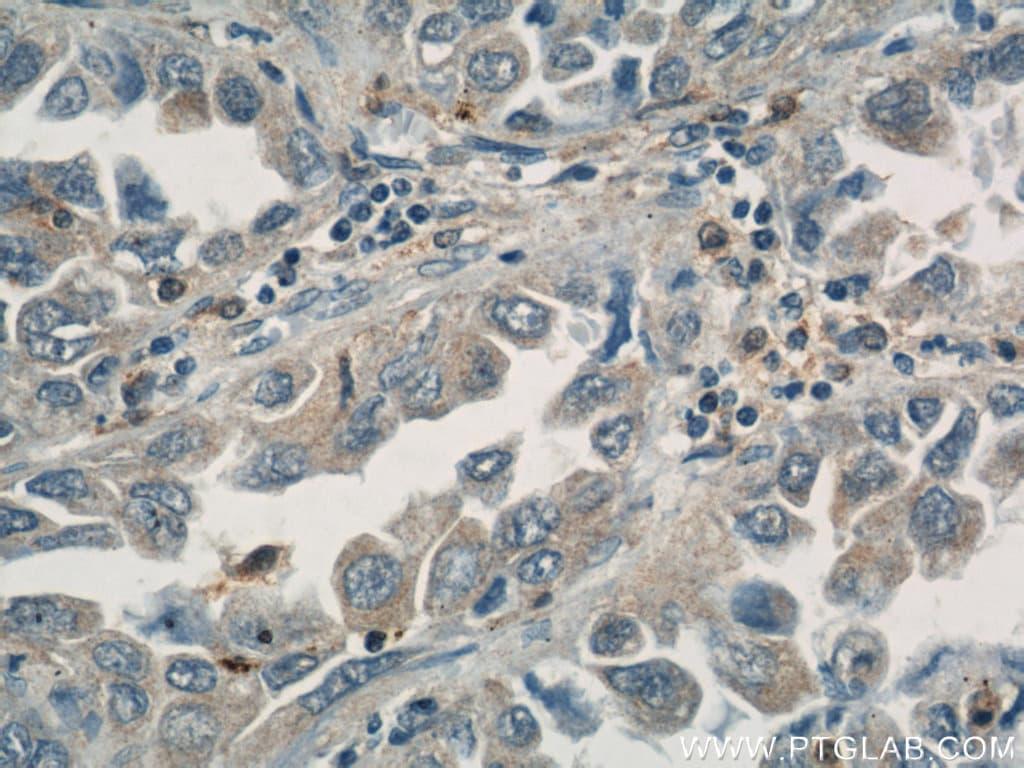 ASC/TMS1 Antibody in Immunohistochemistry (Paraffin) (IHC (P))
