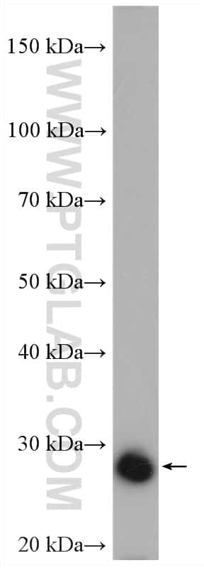 UCK2 Antibody in Western Blot (WB)