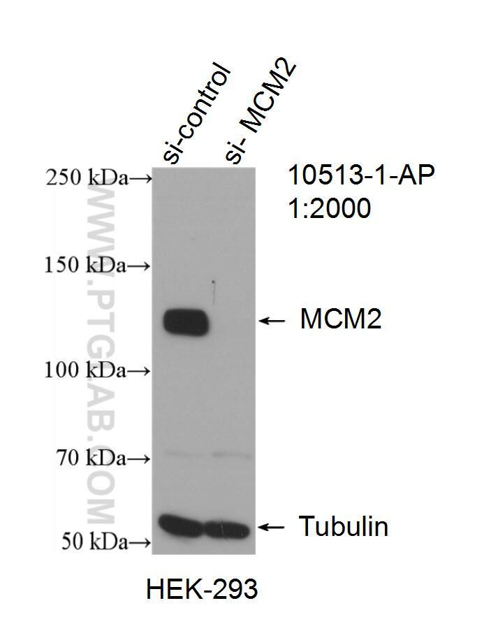 MCM2 Antibody in Western Blot (WB)