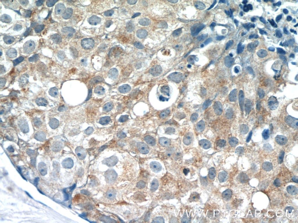 PACSIN2 Antibody in Immunohistochemistry (Paraffin) (IHC (P))