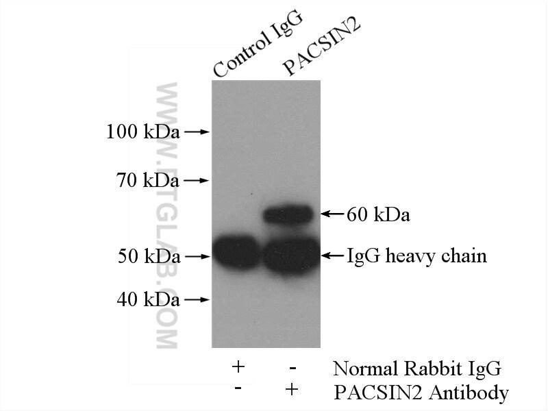 PACSIN2 Antibody in Immunoprecipitation (IP)
