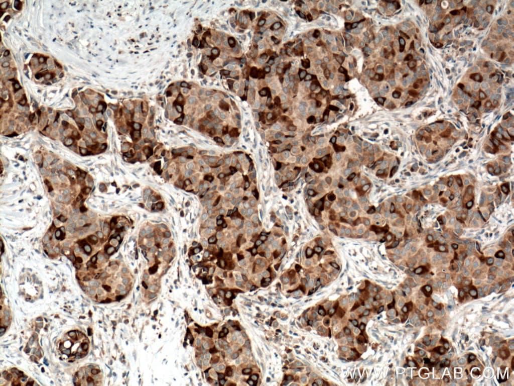RRM1 Antibody in Immunohistochemistry (Paraffin) (IHC (P))