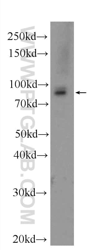 RRM1 Antibody in Western Blot (WB)