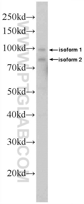 DDX21 Antibody in Western Blot (WB)