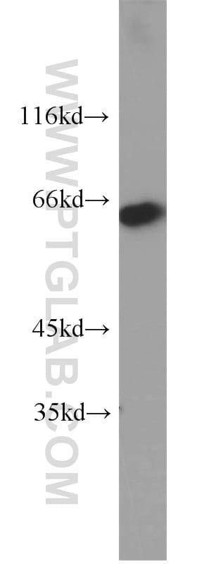 MAOA Antibody in Western Blot (WB)