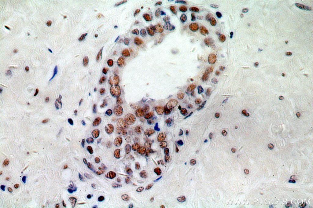 NCL Antibody in Immunohistochemistry (Paraffin) (IHC (P))