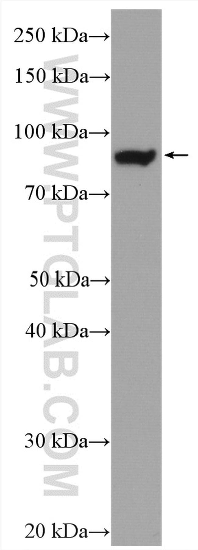 GYS1 Antibody in Western Blot (WB)