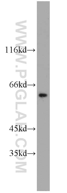 CCT3 Antibody in Western Blot (WB)