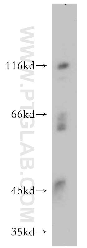 INVS Antibody in Western Blot (WB)