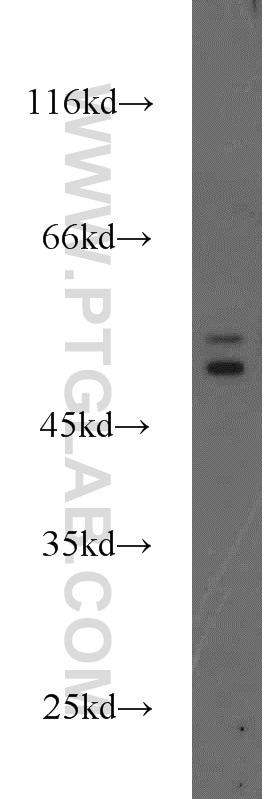 Cytokeratin 6A Antibody in Western Blot (WB)