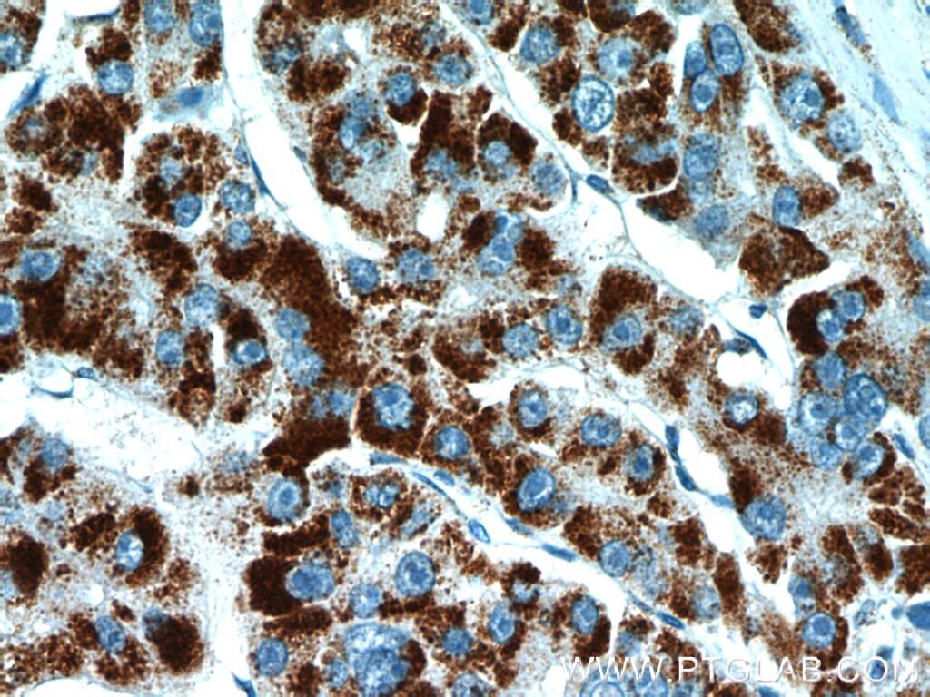 PEX14 Antibody in Immunohistochemistry (Paraffin) (IHC (P))