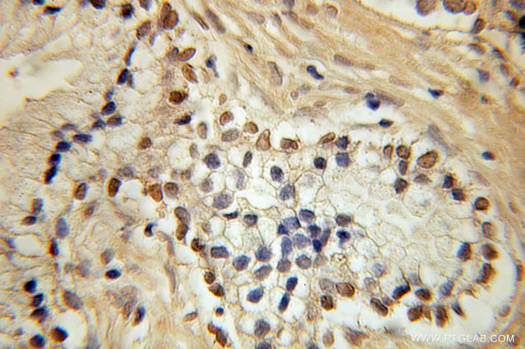 HEY2 Antibody in Immunohistochemistry (Paraffin) (IHC (P))